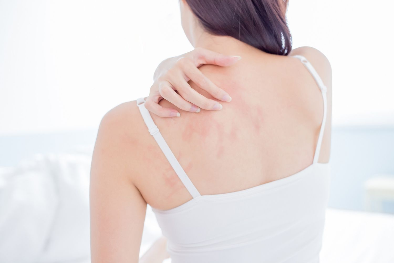 Beat eczema – Look & feel Great! Now is the time to put a stop to the intolerable pain of eczema!